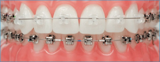 damon-system-orthodontie-broches
