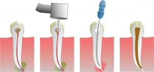 endontologie