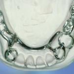 frameprothese2-150x150