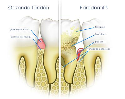 parodontitis_0