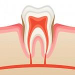 tandvleesbehandeling-150x150