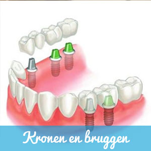Kronen-en-Bruggen