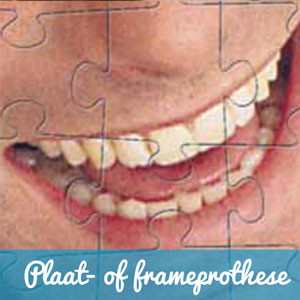 Plaat-of-frameprothese