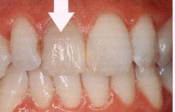 verkleurde-tand